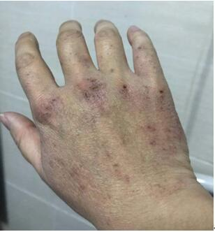 一线抗疫故事——三位战斗在武汉的爱立信员工